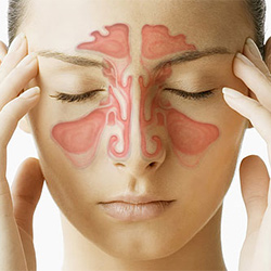 Sinus Medicine  (2)
