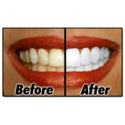 Teeth Whitening (5)